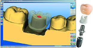 Cerec Abutment
